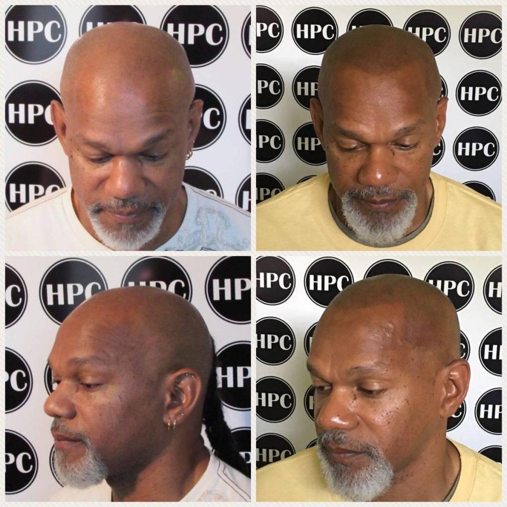 scalp-micropigmentation-florida (12)