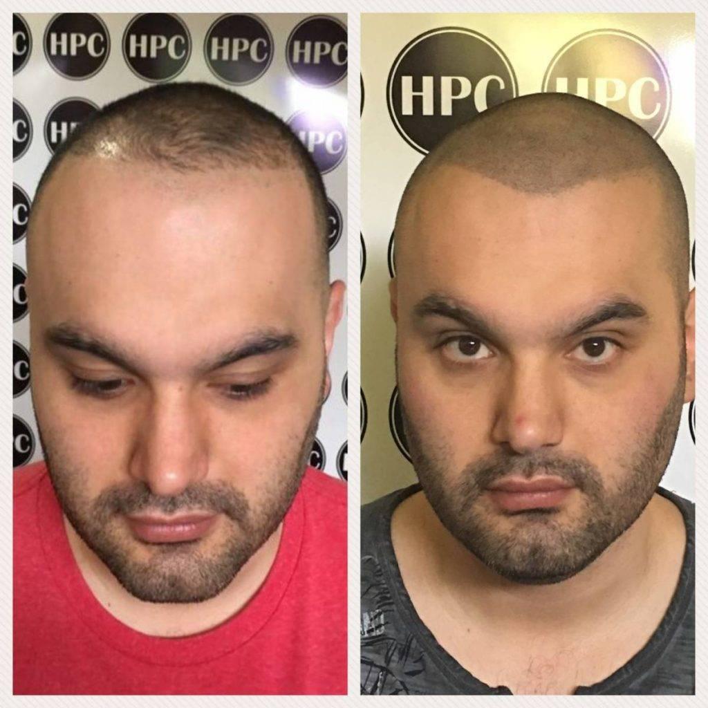 scalp-micropigmentation-florida (13)