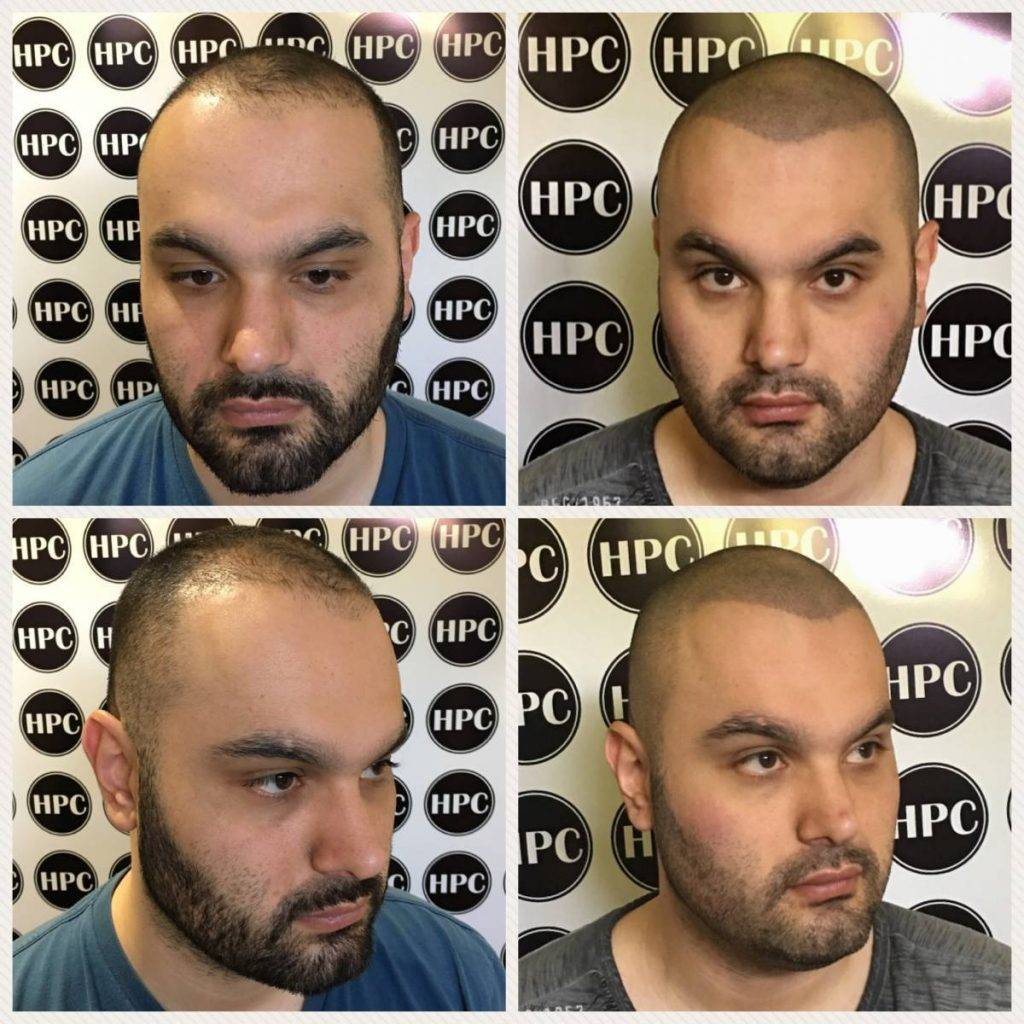 scalp-micropigmentation-florida (15)