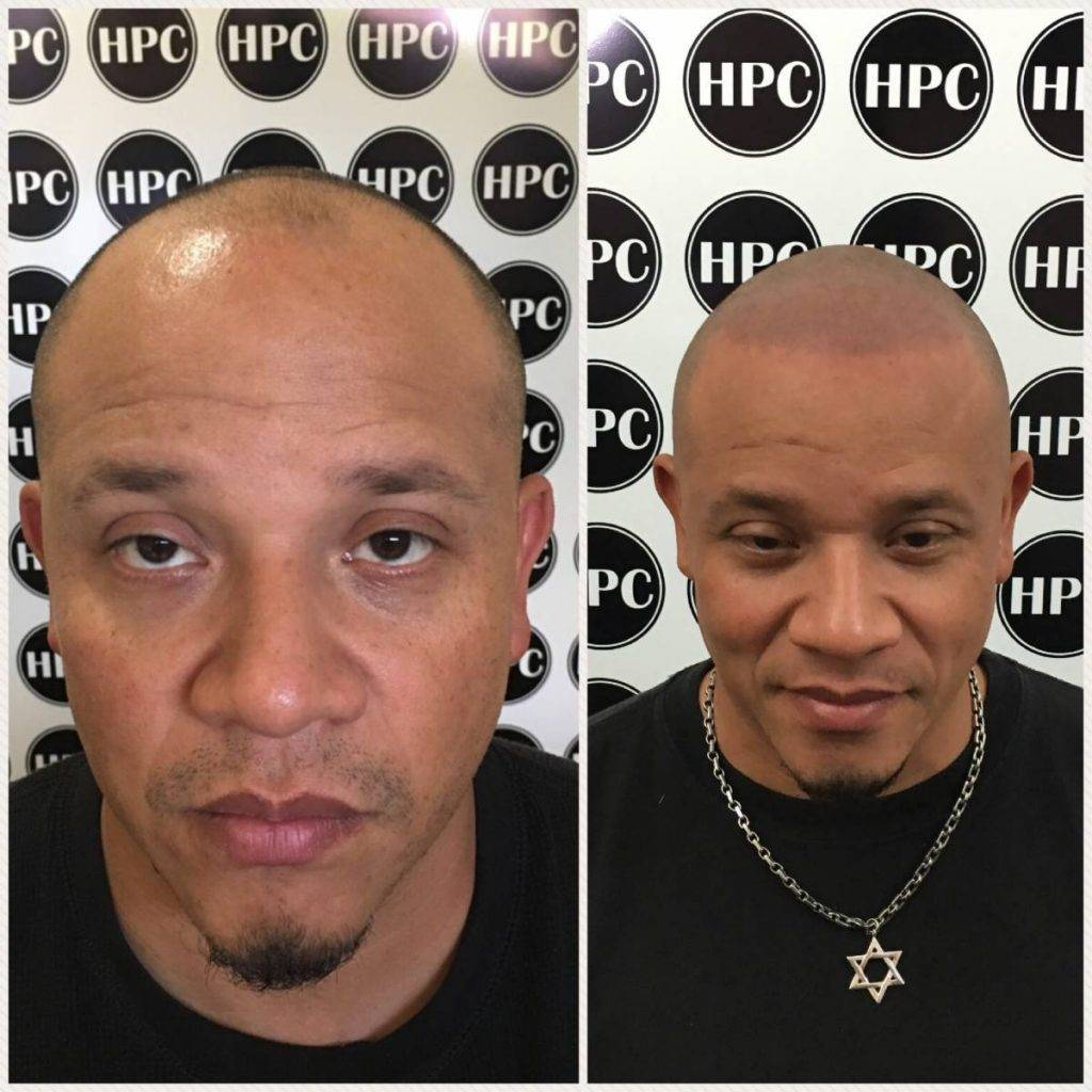 scalp-micropigmentation-florida (18)