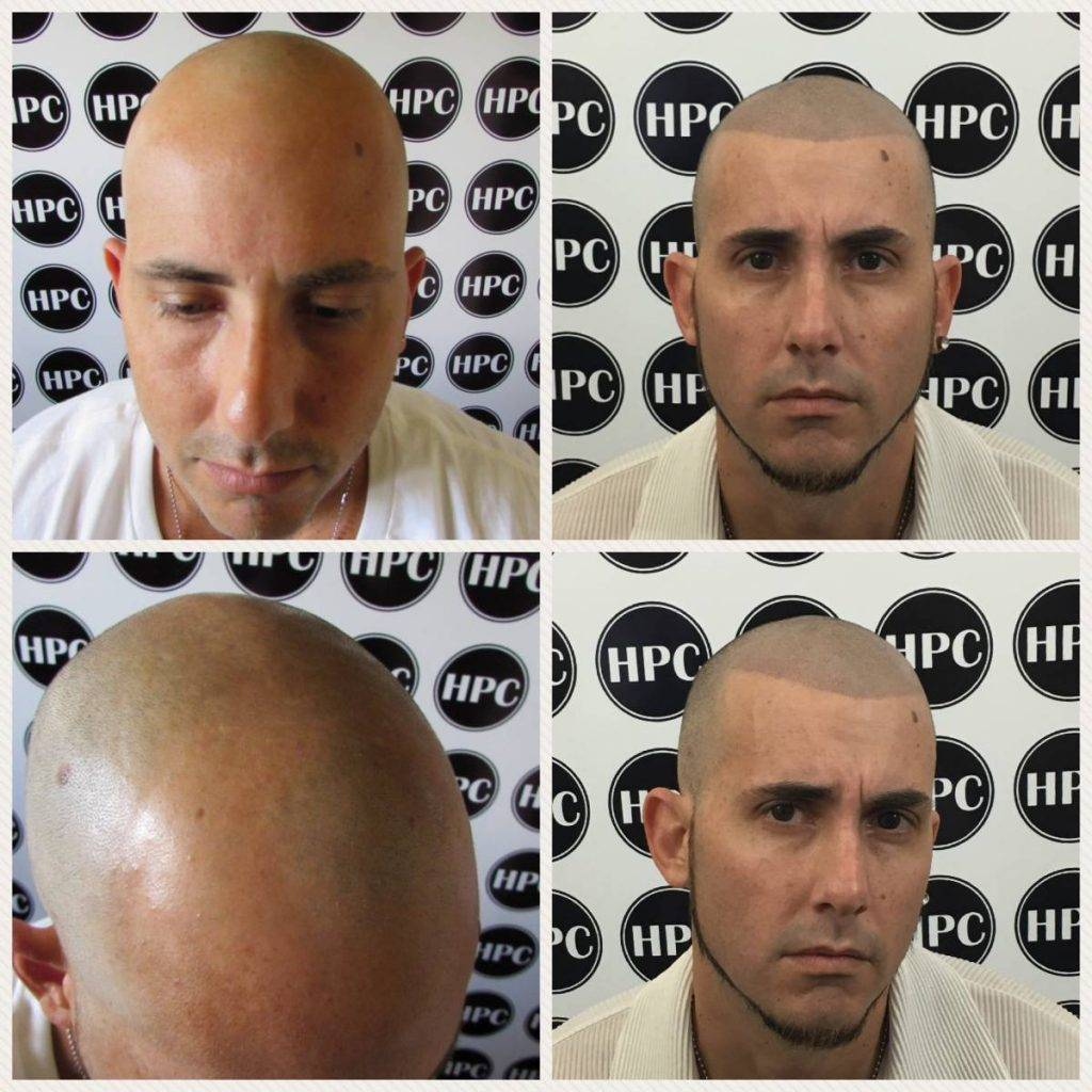 scalp-micropigmentation-florida (19)