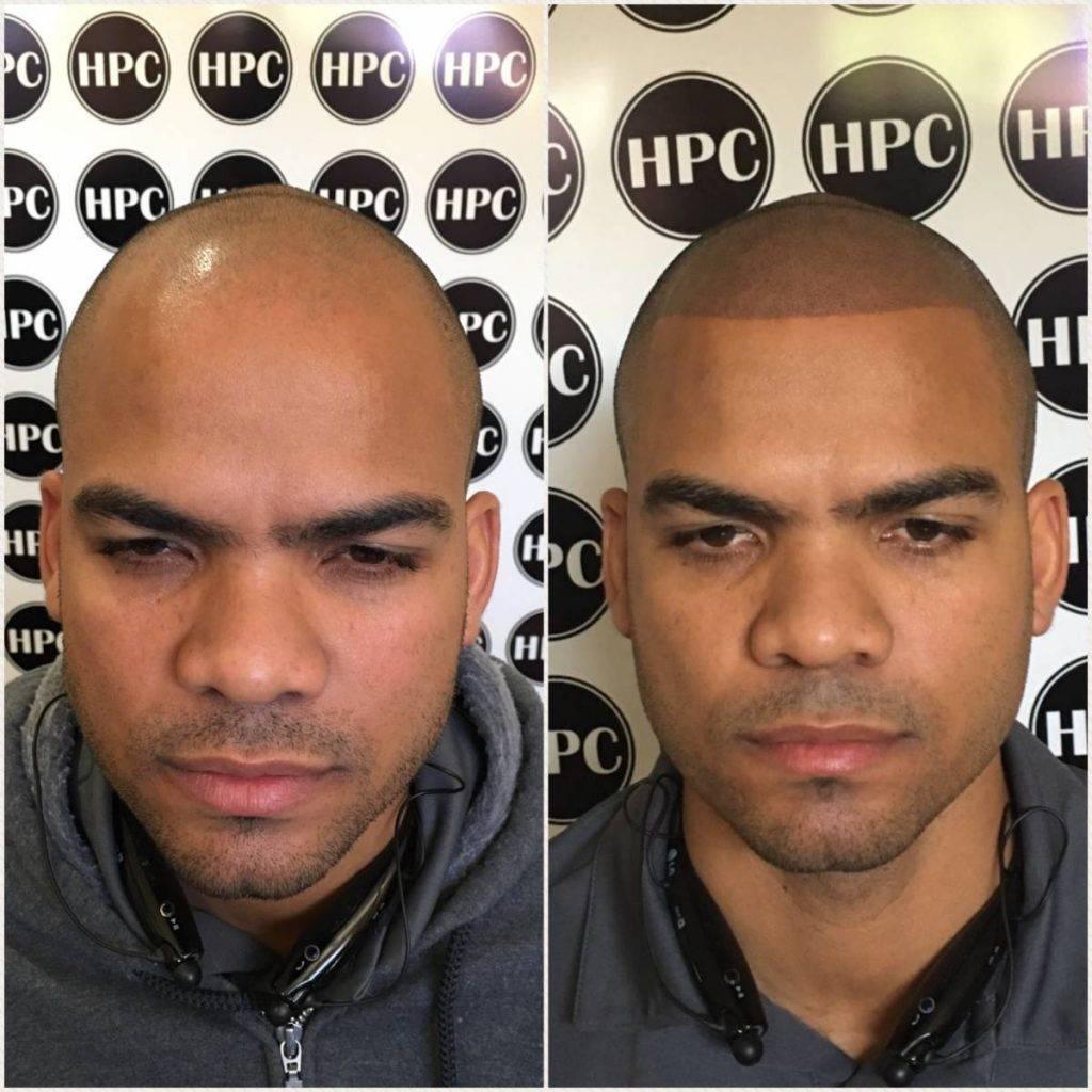 scalp-micropigmentation-florida (24)