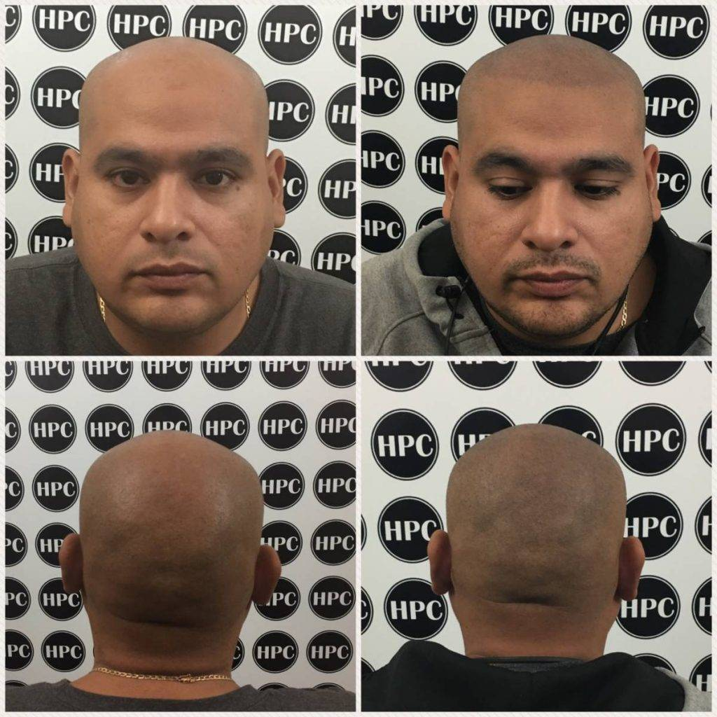 scalp-micropigmentation-florida (26)