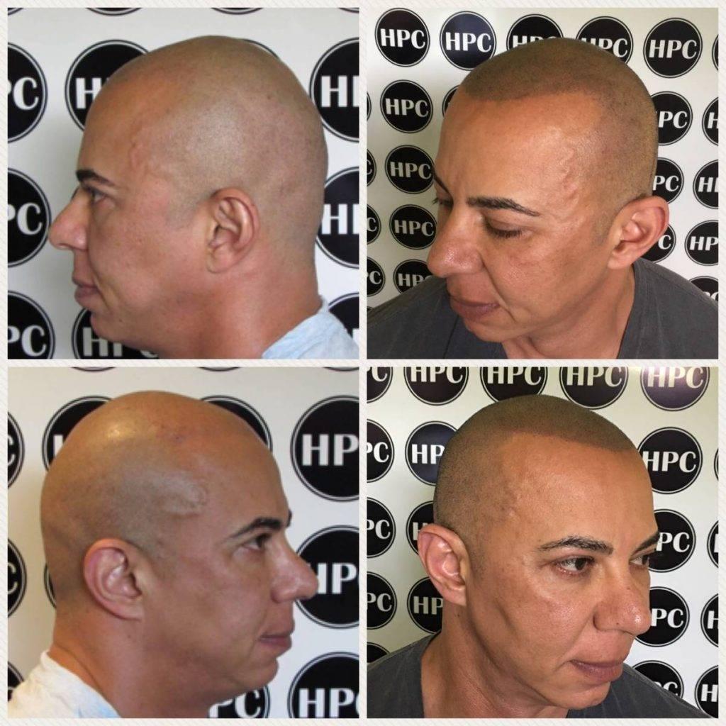 scalp-micropigmentation-florida (28)