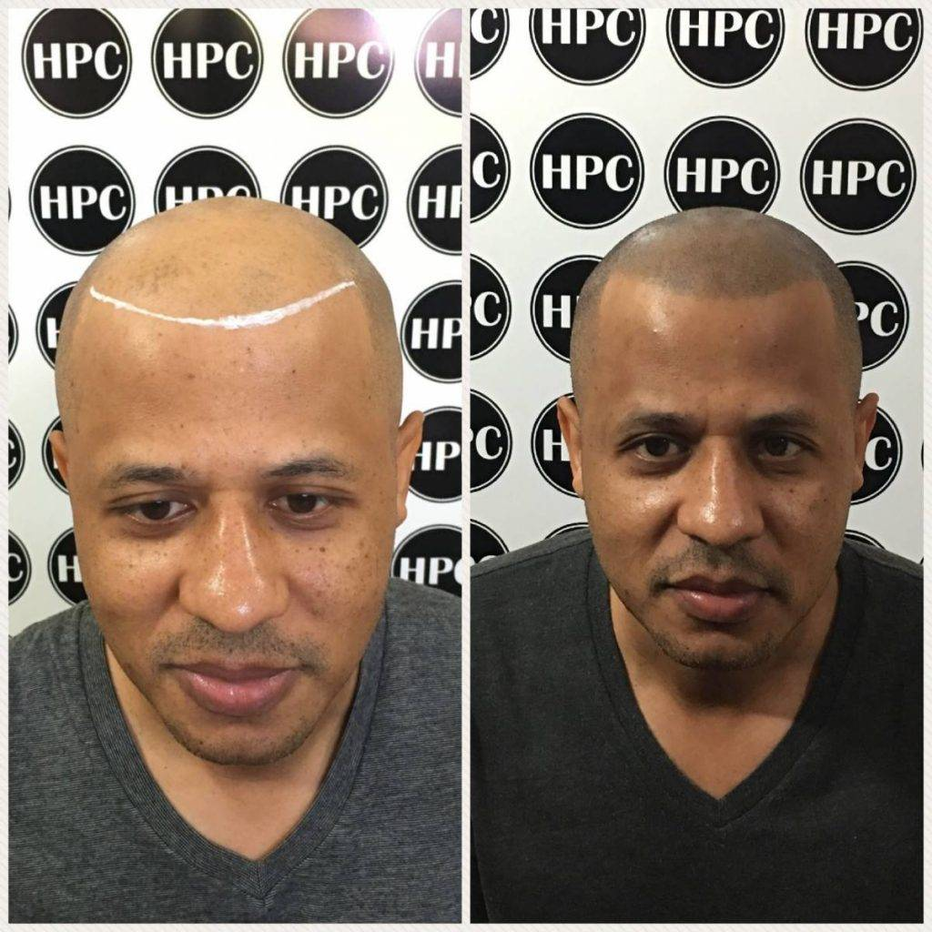 scalp-micropigmentation-florida (29)