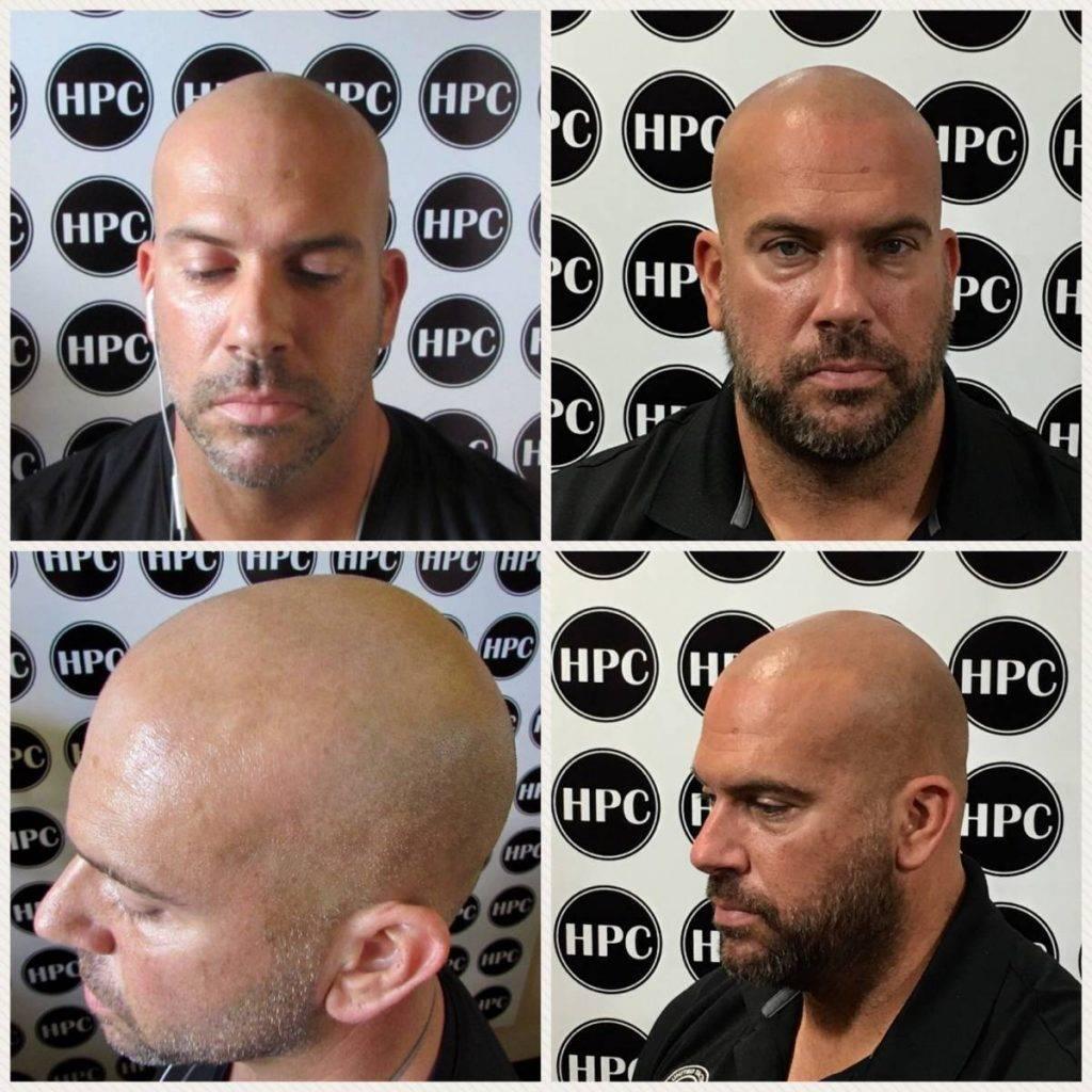 scalp-micropigmentation-florida (32)