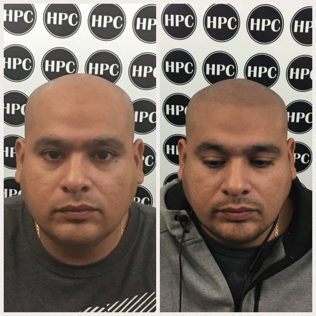 scalp-micropigmentation-florida (34)