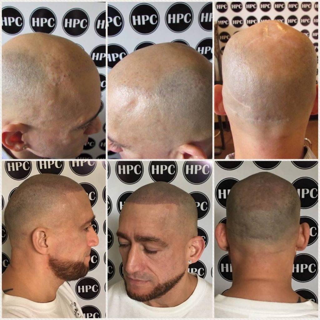 scalp-micropigmentation-florida (8)