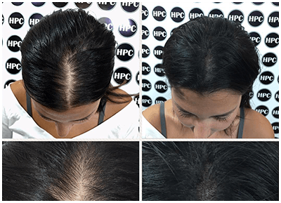 Increase Hair Density