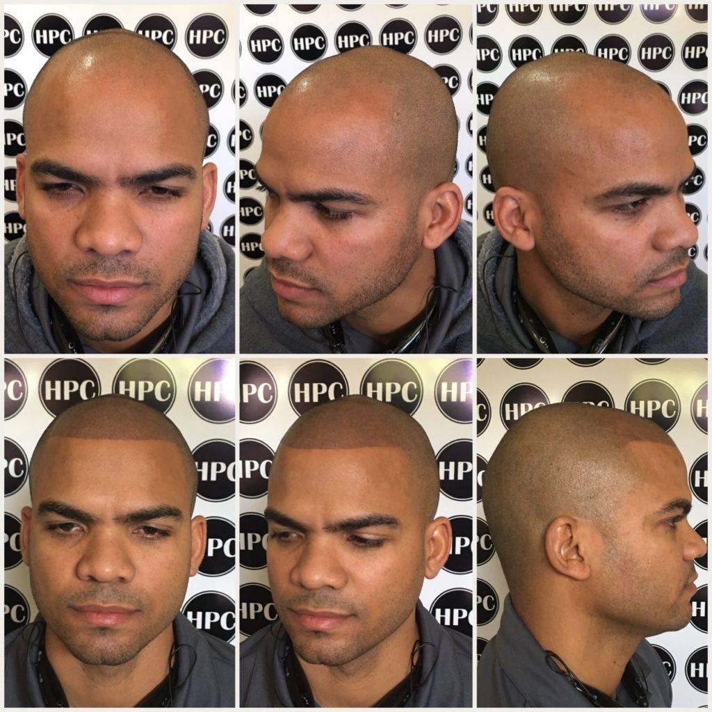 scalp1