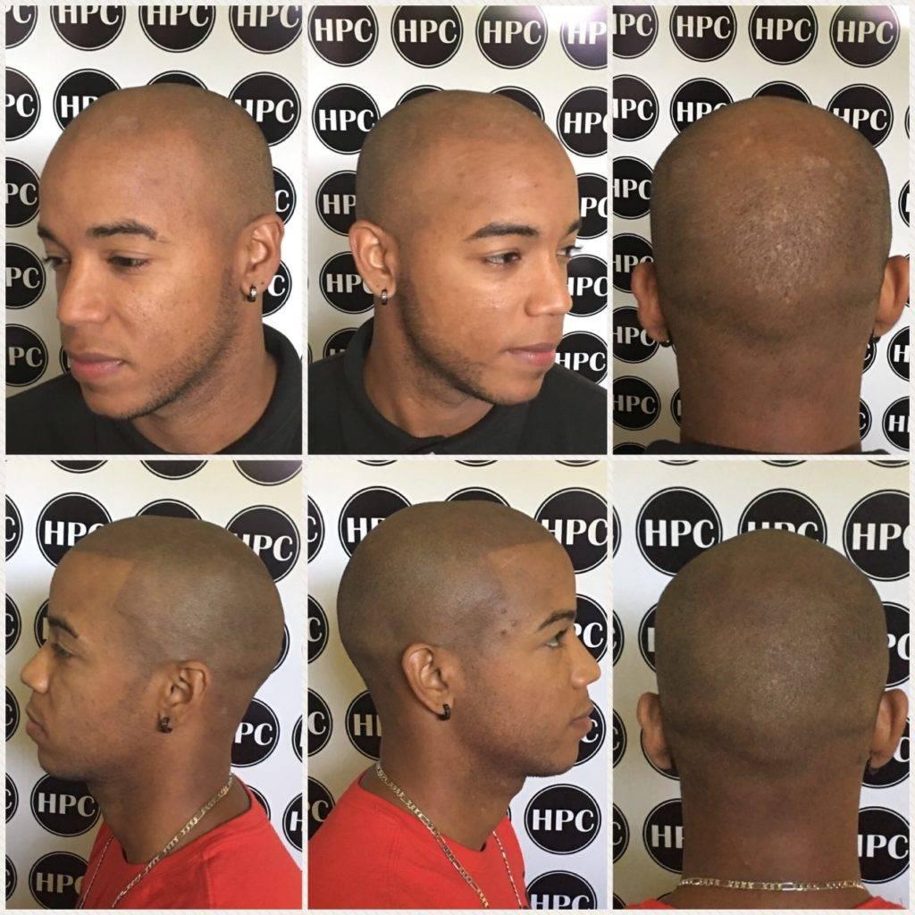 scalp5