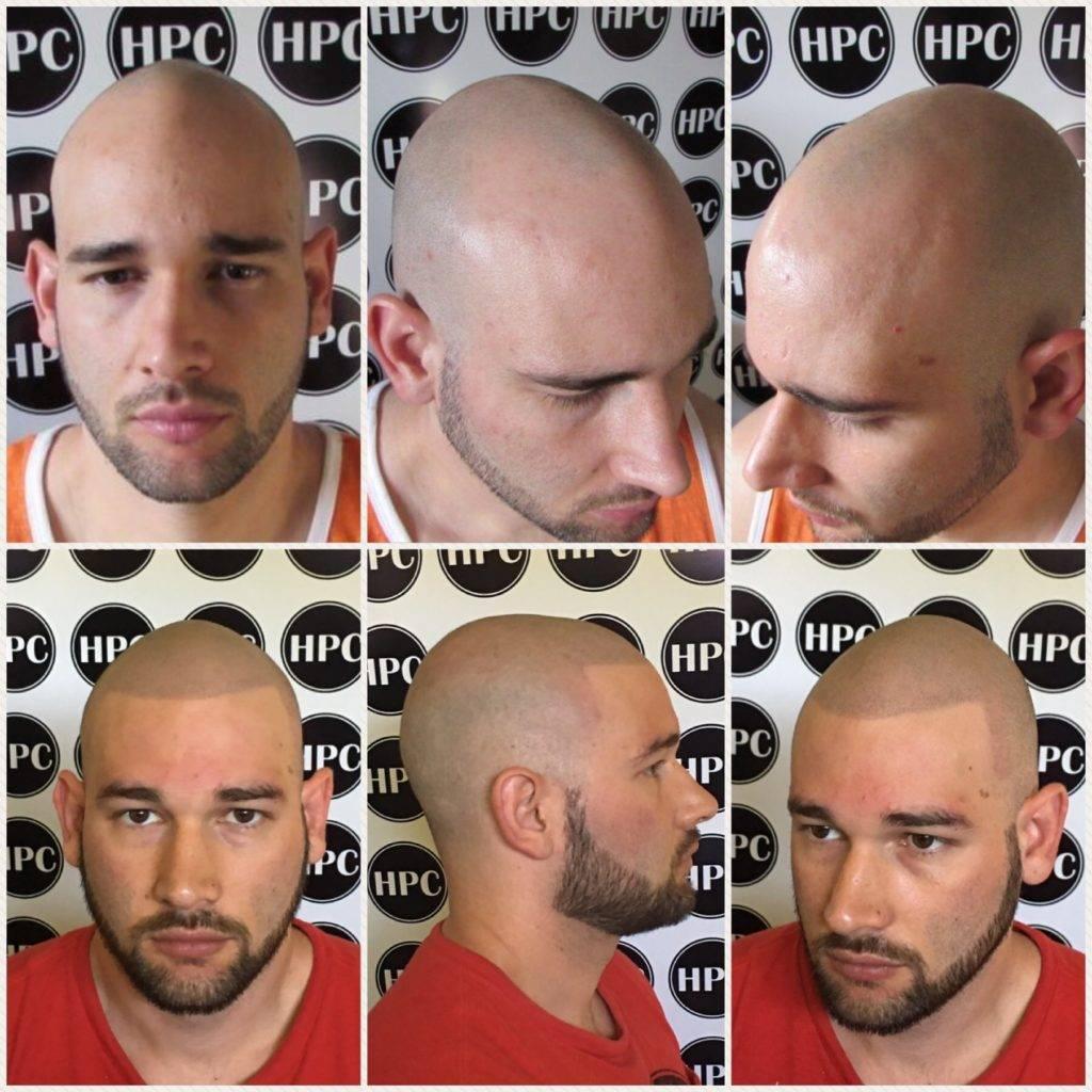 scalp6